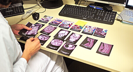 A radiologist sits at a table and sorts cards with different texts and images