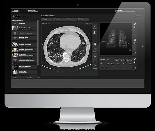 Auf einem Bildschirm ist eine Programm-Oberfläche zu sehen, mittig ist ein MRT- oder Röntgenbild platziert.